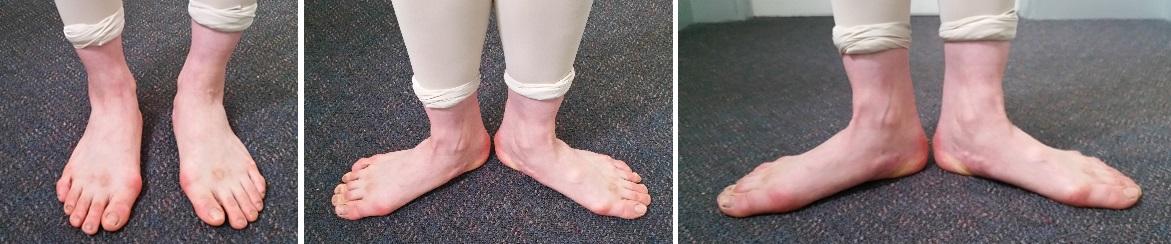 ともちゃんの普通に立っているときの足。