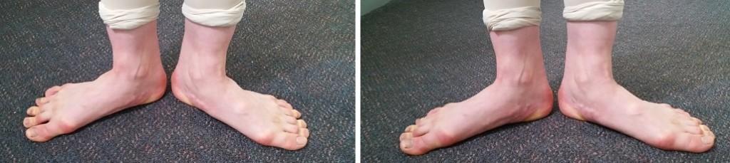 ともちゃんの親指 外反母趾とターンアウト