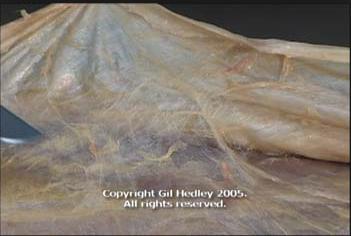 写真はグーグル検索より。実際に見た筋膜