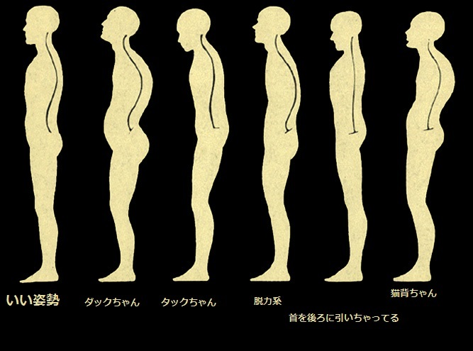 how_to_fix_posture